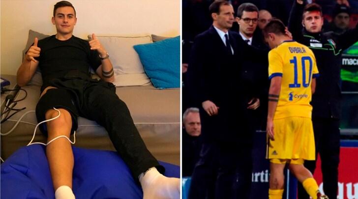 Juventus, il bollettino ufficiale: per Dybala lesione media. Rischia 40 giorni di stop