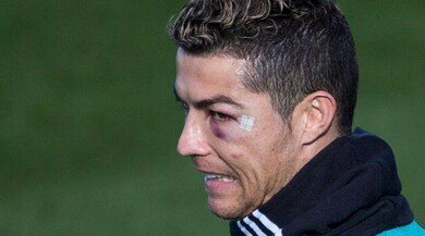 Cristiano Ronaldo torna in campo: occhio nero ecerotto sulla ferita