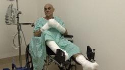 Gara estrema a -50° gradi in Canada, Massiccione è vivo, ma rischia l'amputazione mani e piedi