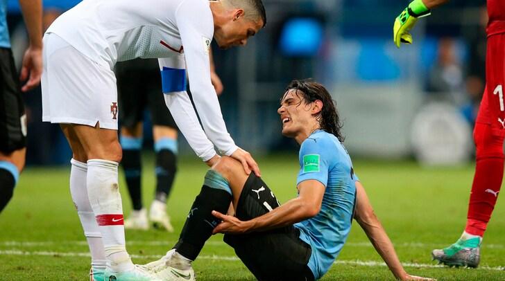 Cavani, l'Uruguay torna a sperare: nessuna lesione grave