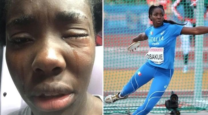 Moncalieri, aggredita Daisy Osakue: colpita da un uovo all'occhio