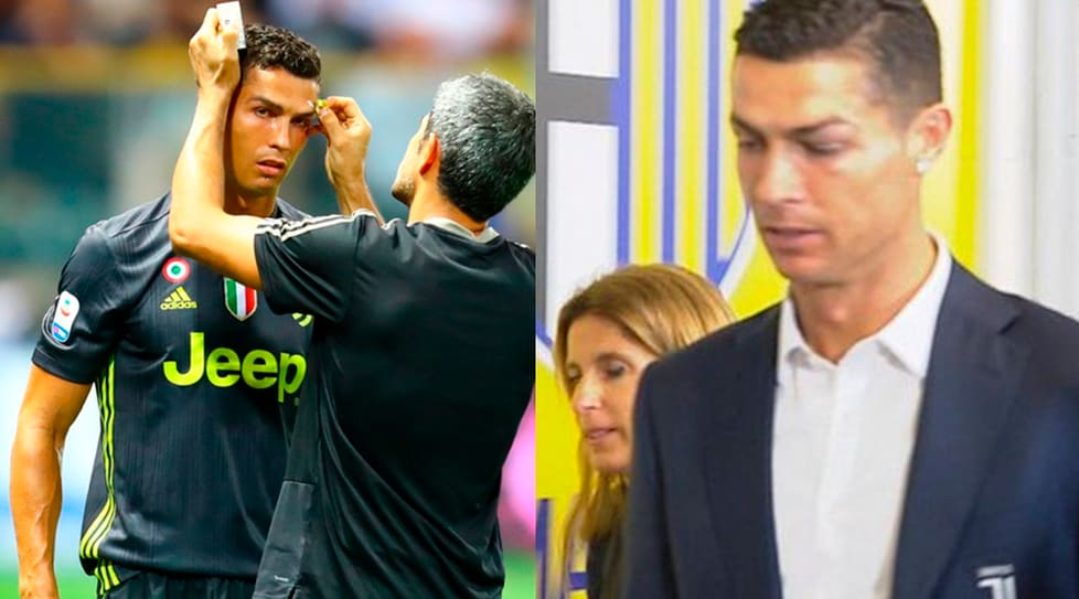 Il segno sul viso del portoghese a causa di uno scontro fortuito con un difensore gialloblù nel primo tempo