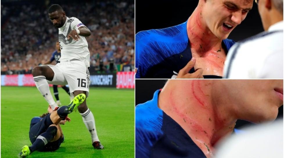 ?Nations League: il terzino francese dolorante dopo un duro contatto con il difensore tedesco nel match dell'Allianz Arena