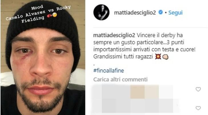 Juventus, De Sciglio festeggia il derby con l'occhio nero sui social