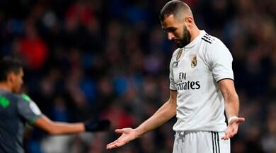 Real Madrid, Benzema infortunato. Il francese si rompe il mignolo della mano