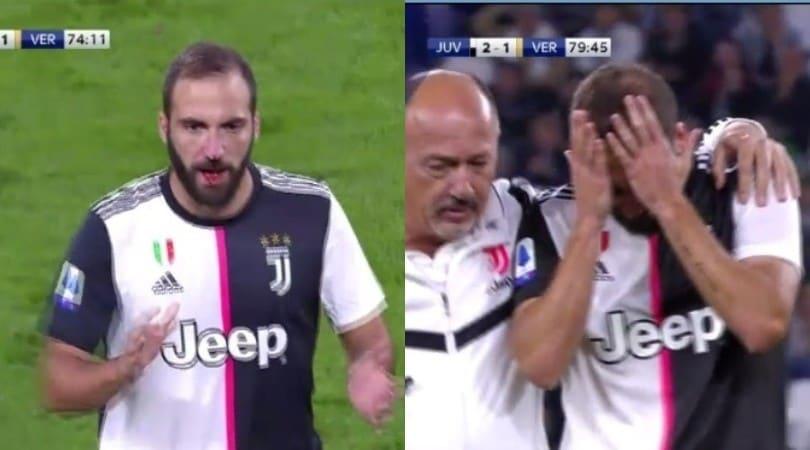 Juve-Verona, Higuain si fa male: sangue dal naso dopo uno scontro
