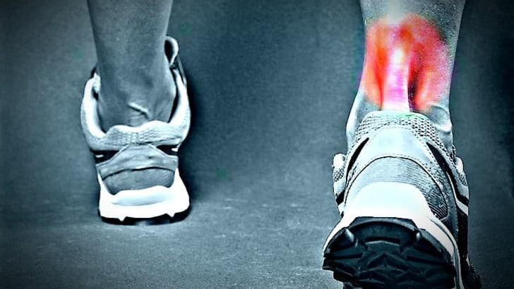 Tendinite o tendinosi? Come classificare quel dolore al tendine d'Achille dopo la corsa