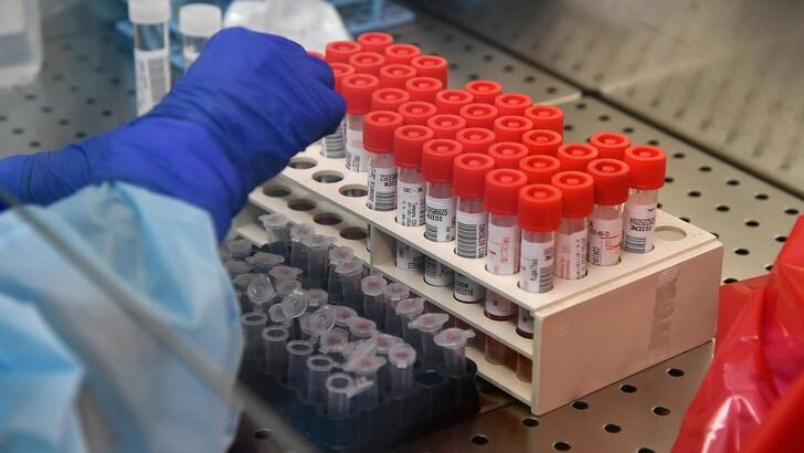 Coronavirus, l'Oms avvisa i fumatori: alta mortalità e sintomi gravi