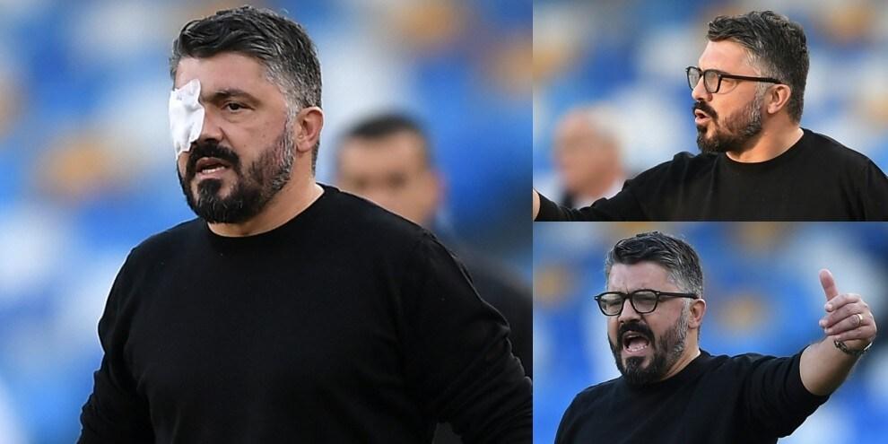 Gattuso con l'occhio coperto in Napoli-Sampdoria