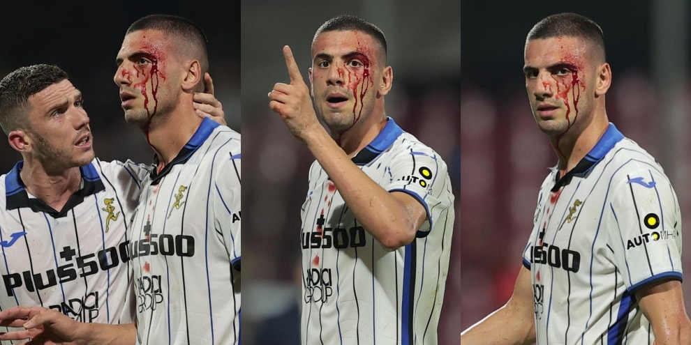 Salernitana-Atalanta, Demiral viene colpito al volto e esce dal campo insanguinato FOTO